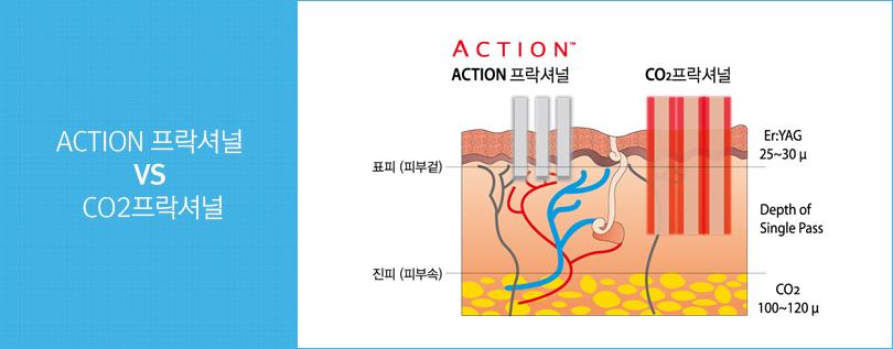 Action 프락셔널과 CO2프락셔널 비교그림. Co2프락셔널에 비해 ACTION 프락셔널은 진피 자극이 덜함을 보여줌